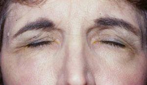 спазмы глазных нервов