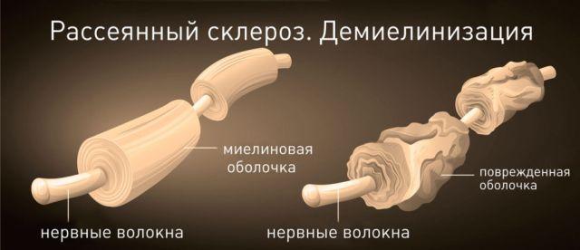 Демиелинизация при рассеянном склерозе