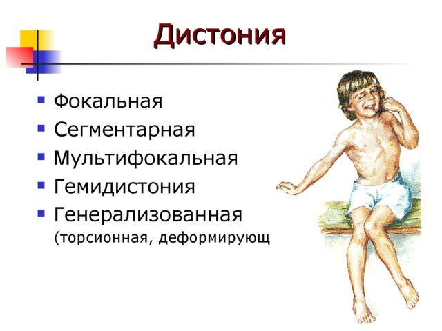 дистония