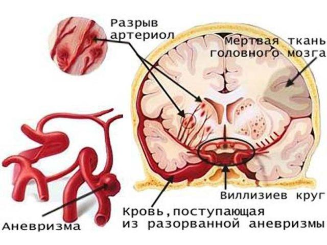 Анатомия артерий мозга
