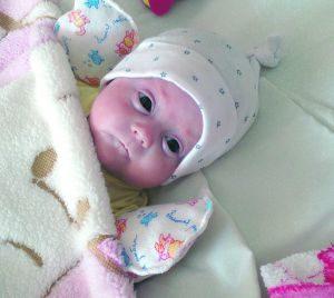 наружная гидроцефалия у девочки