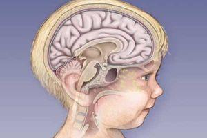 Воспаление мозга у ребенка