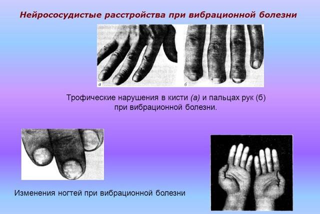 Нейрорасстройства при вибрации
