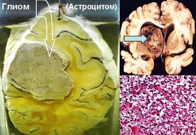 Астроцитома и глиома