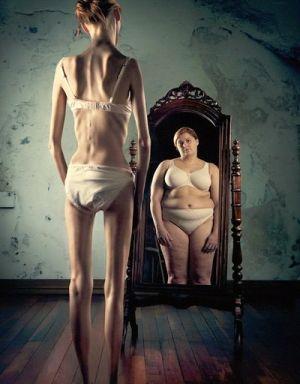 синдром нервной анорексии