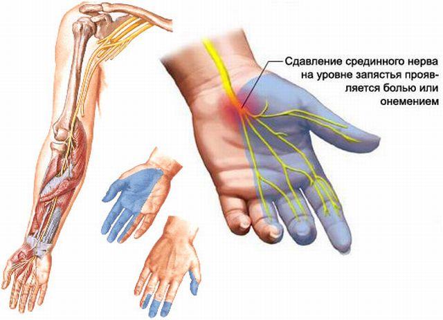 Лечение онемения пальцев правой руки при остеохондрозе