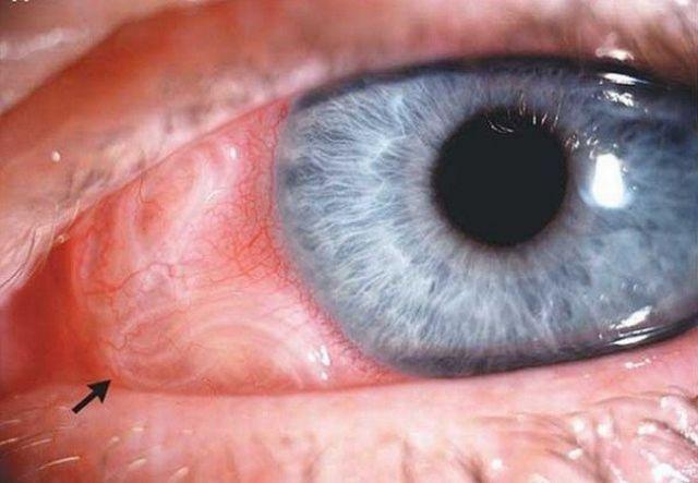 Цистоды в глазу