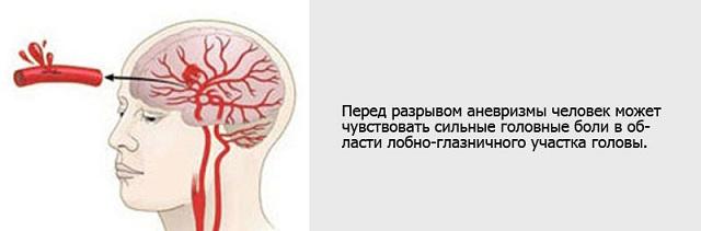 Симптомы разрыва аневризмы
