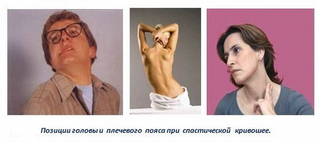 Позы тела при спастичности шеи