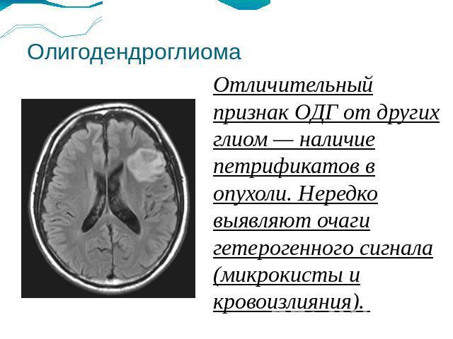олигодендроглиома с наличием петрификатов