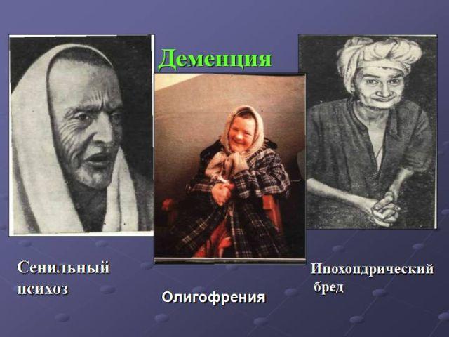 Разновидности деменции