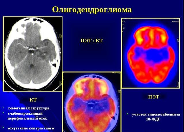 Диагностика опухолей мозга