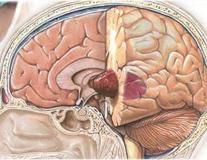 опухоль мозга