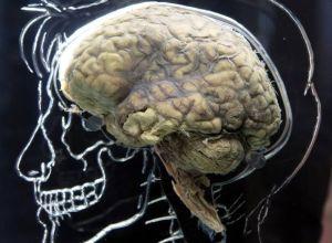 ушиб и контузия мозга