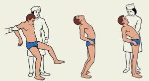 Характерные проявления при травме мозжечка