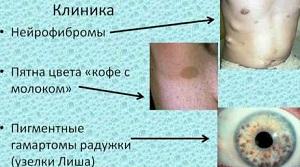 Симптомы нейрофиброматоза