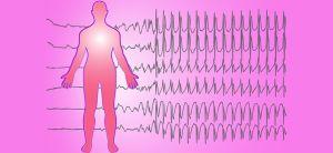 Эпилептиформный синдром