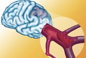 Сосудистые нарушения головного мохга