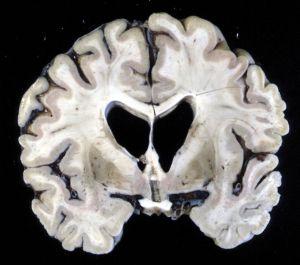 Кортикальная церебральная атрофия