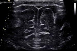 магнитно-резонансная томография мозга