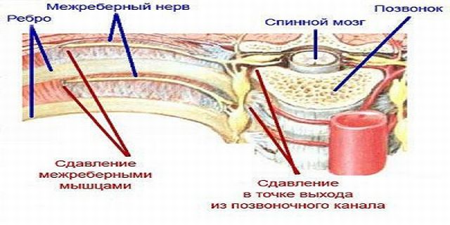 Остеохондроз межреберный симптомы и лечение