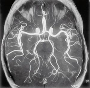 церебральная ангиография