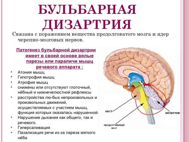 Причины дизартрии