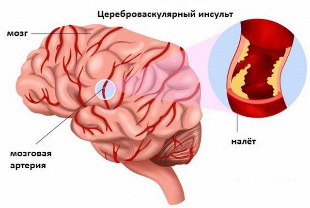 инсульт цереброваскулярный