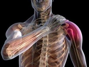 Дизестезия плеча