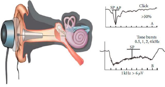 Электрокохлеография слухового нерва