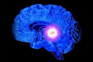 киста в мозгу