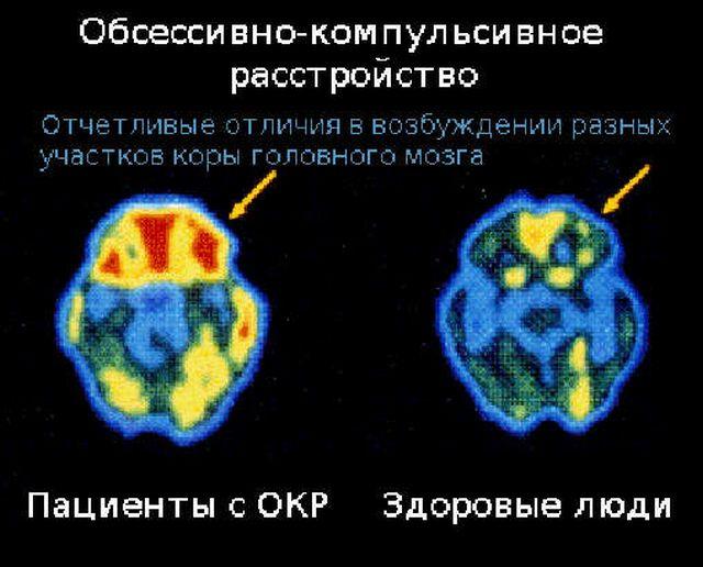 Мозг человека с ОКР