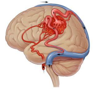 шунтирование мозга