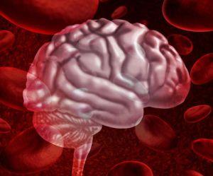 инсульт мозга