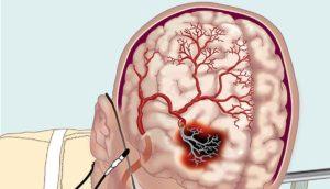 вазоспазм головы