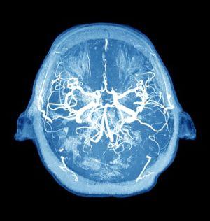 головной мозг и опухоли