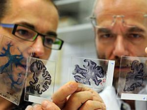 Генетические болезни ЦНС