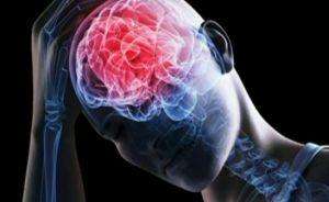 Отечность мозга