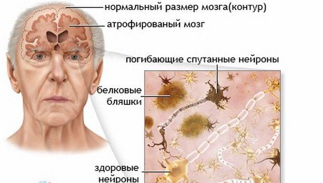 Отмирание клеток в мозгу