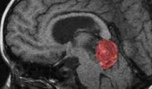 пинеальная область головного мозга
