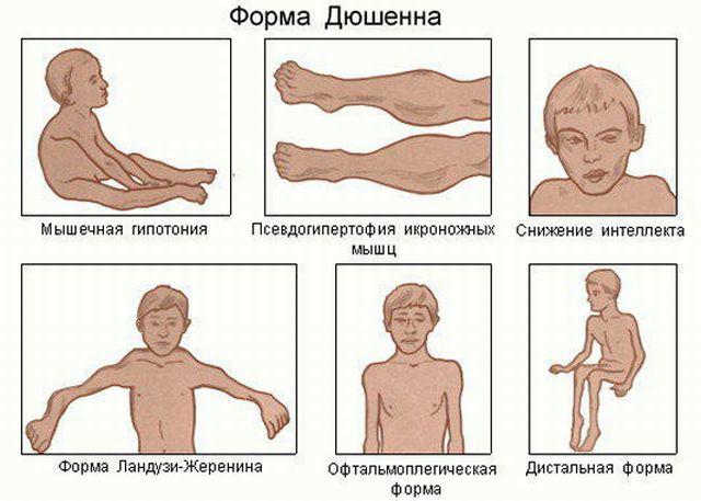 Симптомы миодистрофии