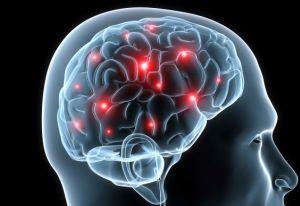 Заболевания сосудов головы