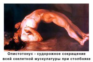 Опистонус при столбняке