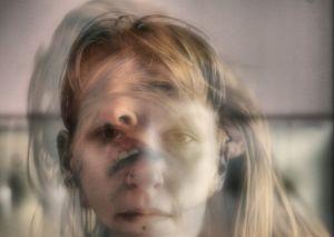 расстройство зрения