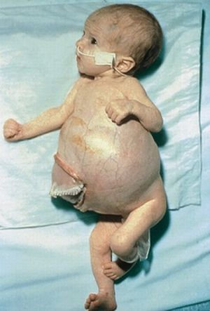 Опухолевый процесс у младенца