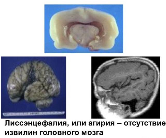 Мозга при агирии