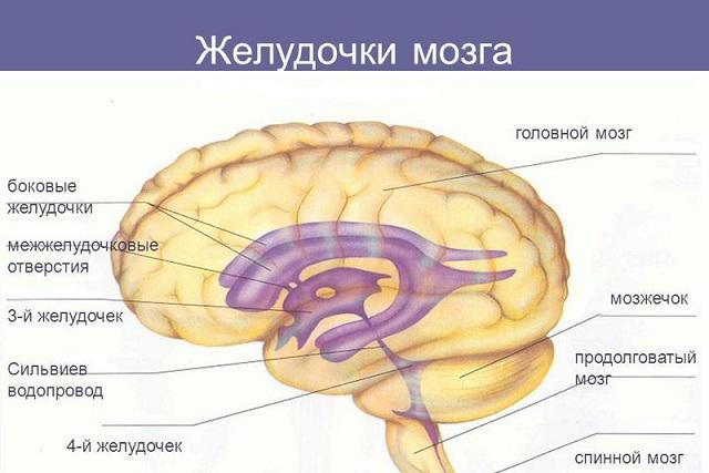 Дилатация (асимметрия) боковых желудочков головного мозга у ...