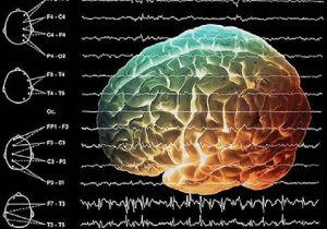 диффузные изменения БЭА мозга