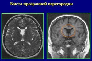 Киста на МРТ