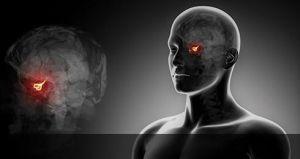 Опухолевое образование гипофиза